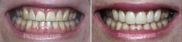Laser Gum Lift Melbourne Aesthetic Dental